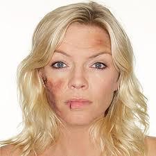 beaten-woman